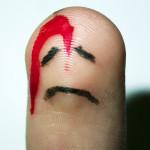 bloedende vinger